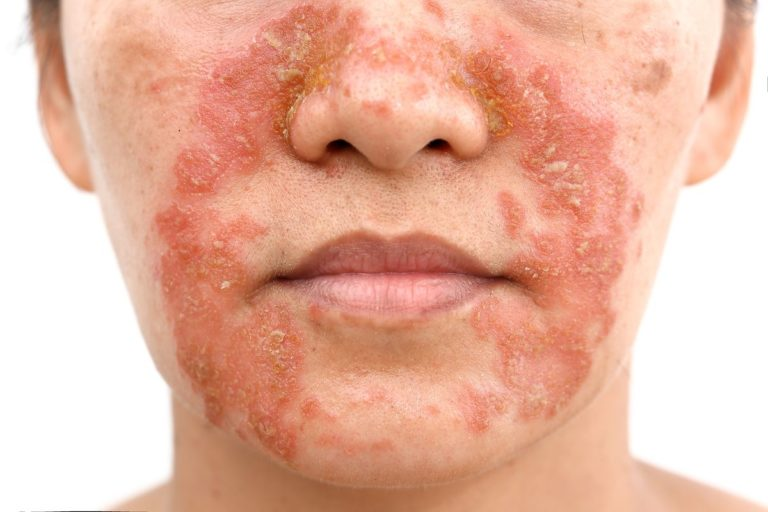 Seboroická dermatitida